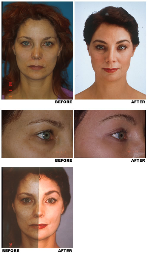 Forehead And Eyebrows Dr Evans Facial Aesthetic