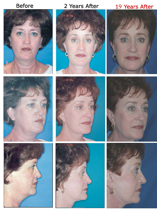 Face (Facelift) – Dr Evans Facial Aesthetic