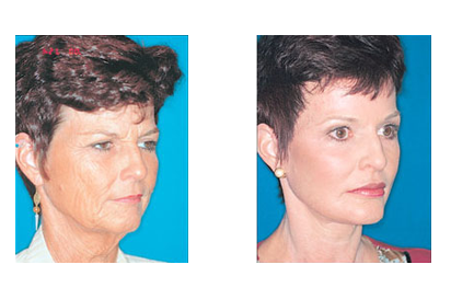 Dr Evans Facial Aesthetic